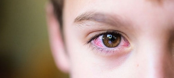 Đau mắt đỏ cũng là một trong những triệu chứng của Covid 19